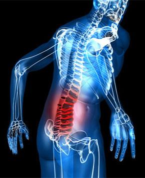 Симптом: боль в пояснице