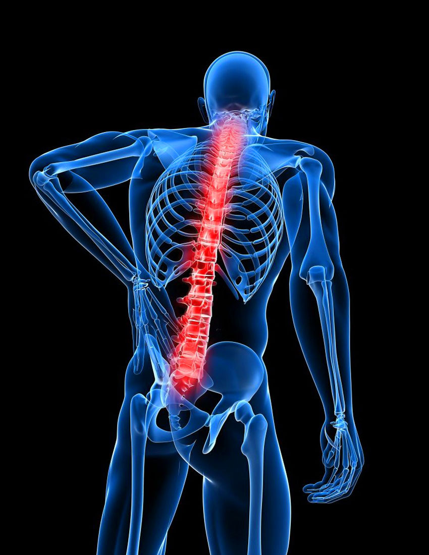Симптом: сильные боли в спине