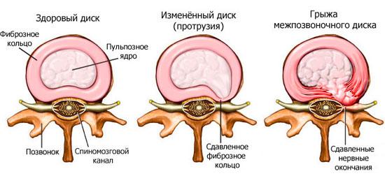 Виды межпозвонковой грыжи, её симптомы и причины