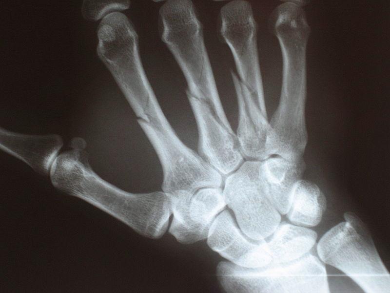 Симптом: ломкость и хрупкость костей