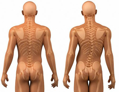 Коррекция осанки - лечение нарушений осанки