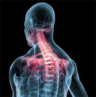 Симптом: боли в шее и спине
